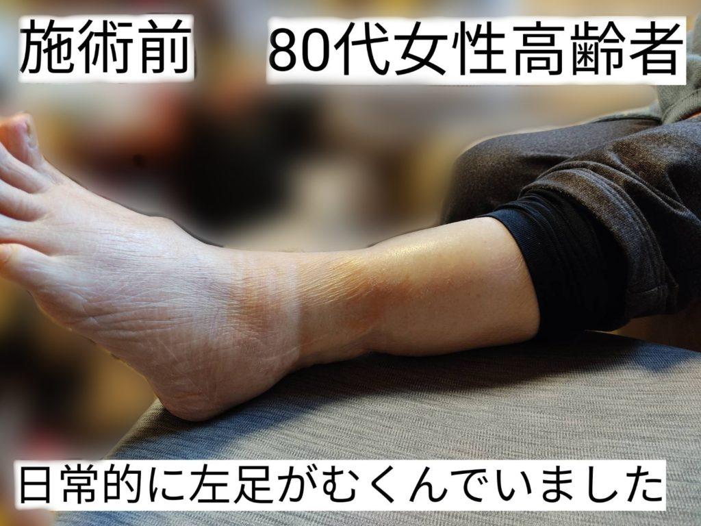 CS60施術前80歳女性